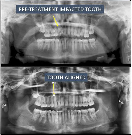 xray of impacted tooth