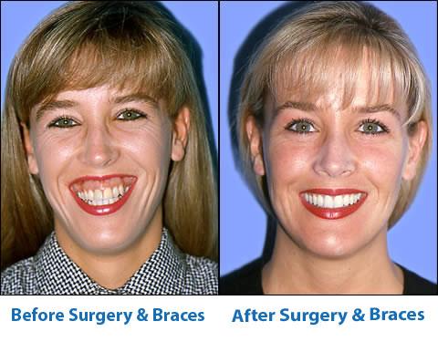 Jaw Surgery Office Of Dr John Digiovanni Newport Beach Ca
