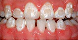 Oral Hygiene Care | Office of Dr John DiGiovanni | Newport